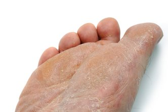 Cleveland Podiatrist | Cleveland Athlete's Foot | OH | Robert Portnow, DPM |